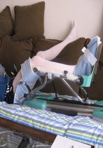 Passive Motion Knee Machines